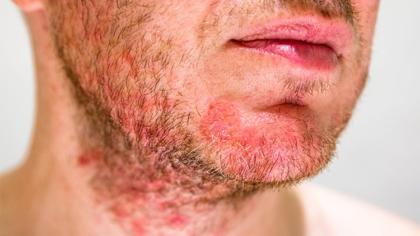 Dermatita seboreica – ce trebuie...