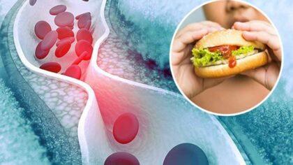 De unde stim daca colesterolul...